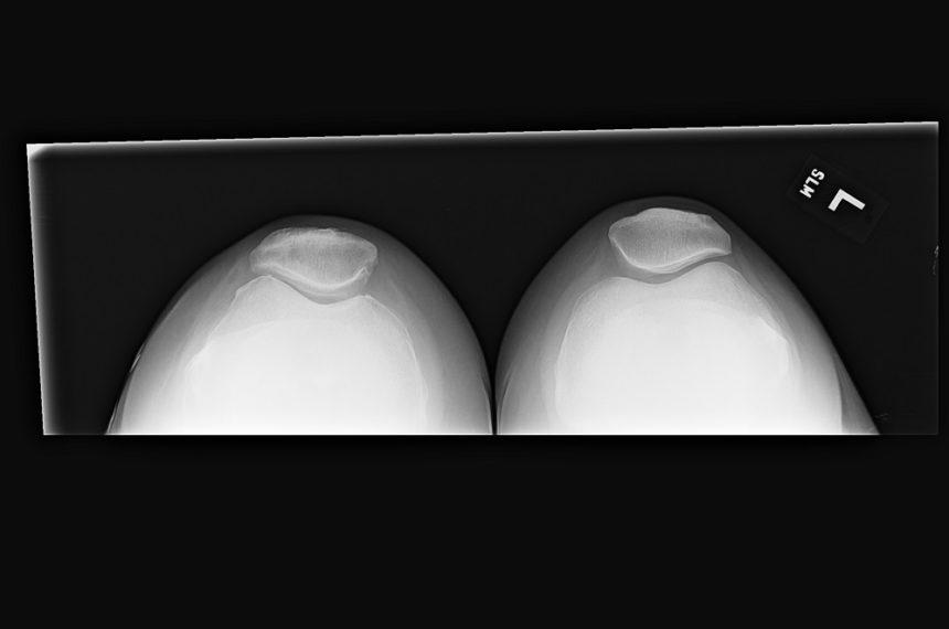 Lateral patella tilt