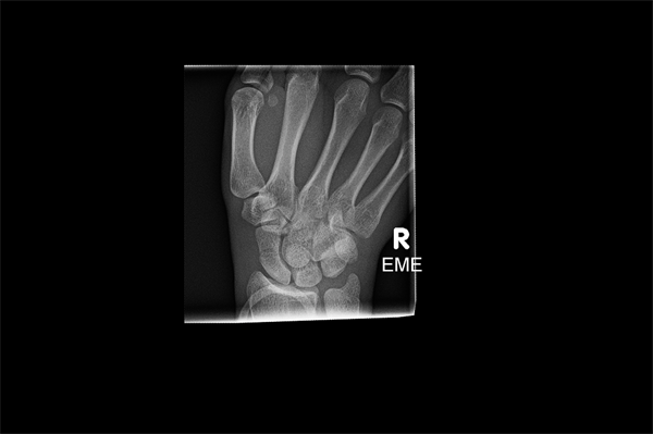 A non-displaced scaphoid waist fracture.