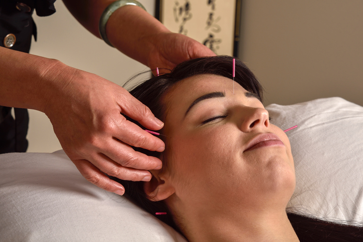 woman getting acupuncture on head and temples