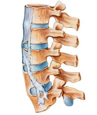 Spine with Ankylosing Spondylitis