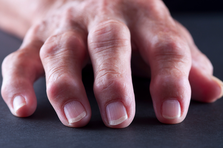 Osteoarthritis Chronic Hand Pain May Be Improved With
