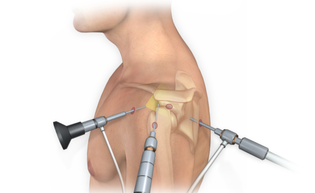 Arthroscopic surgical repair in the shoulder