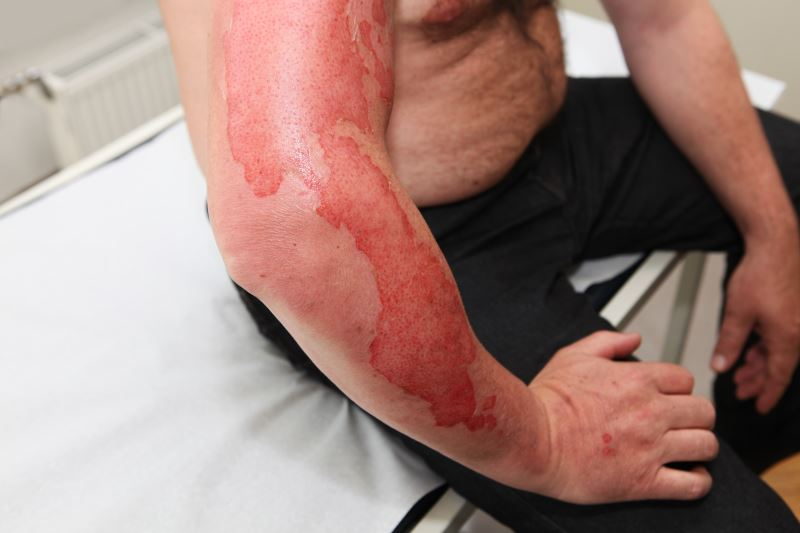 First-degree burns on a man's arm