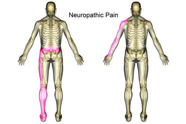 Left untreated, nerve damage may worsen over time. Pain usually starts in the nerves farthest from the brain and spinal cord – like those in the feet and hands – and then moves up into the legs and arms.