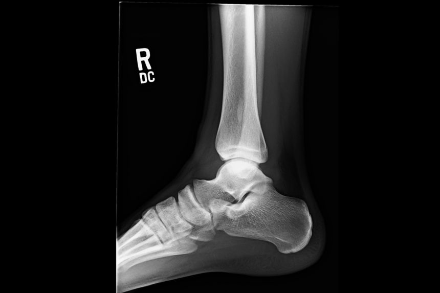 Figure 3. Lateral radiograph of the right ankle.
