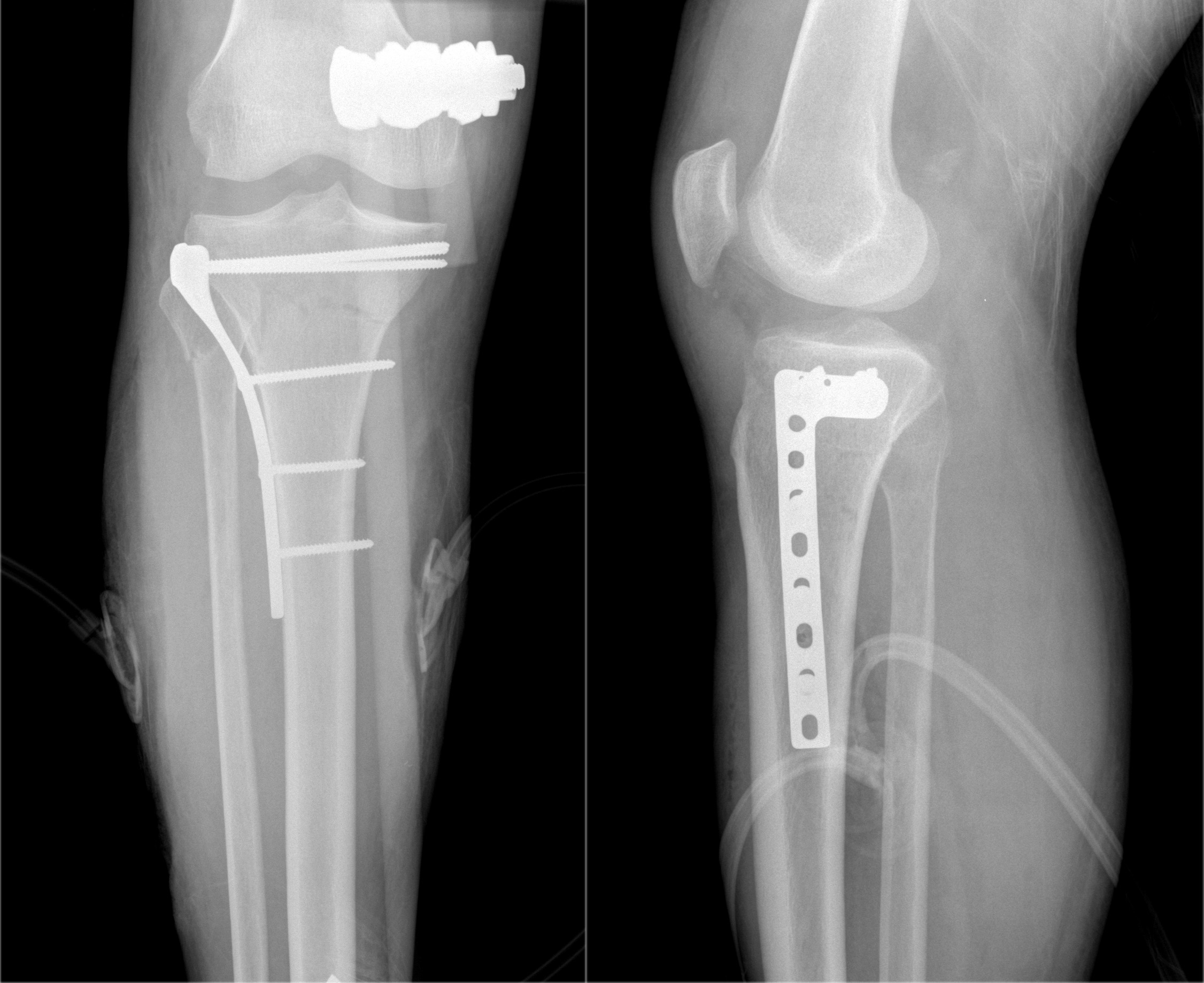Open reduction internal fixation (ORIF) of tibial plateau