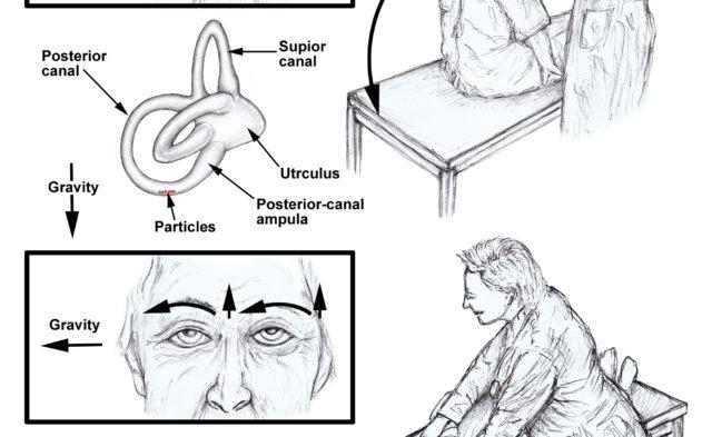 Vestibular Migraine Symptoms, Triggers Identified - Clinical