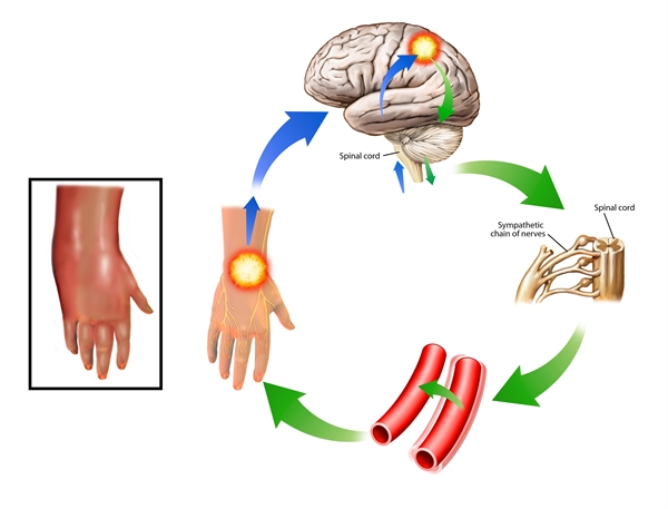 Although the signs and symptoms of CRPS are nonspecific, similar manifestations can occur early or late during the healing process from surgery or a traumatic injury. In the case of limb fractures, for example, patients may first experience symptoms fulfilling CRPS I criteria, such as spontaneous and movement-induced pain, sensitization to a variety of mechanical and thermal stimuli, edema, vasomotor instability, and joint stiffness up to 25 weeks after the fracture.1 Healthcare providers should remember that patients can have great variability in recovery, including recovery time and expression and severity of individual signs and symptoms.1 In some cases, immobilization, whether by medical device (eg, cast) or from guarding to avoid pain exacerbation, can induce or contribute to CRPS-like manifestations. Therefore, patients experiencing CRPS-like symptoms following a fracture or other injury should be referred to physical therapy to improve their outcomes.1 Photo credit: John T. Alesi / Science Source