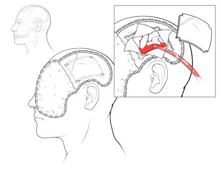 Chronic Pain Associated With Traumatic Brain Injury Causes And