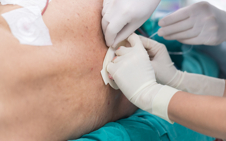 targeted epidural steroid injection