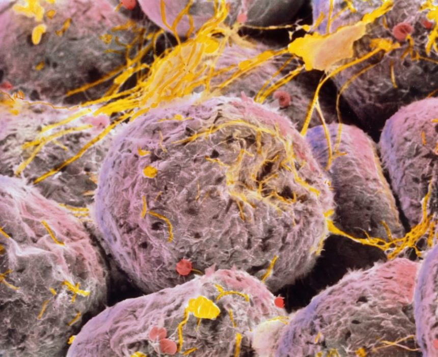 Colored SEM of adipose tissue showing fat cells