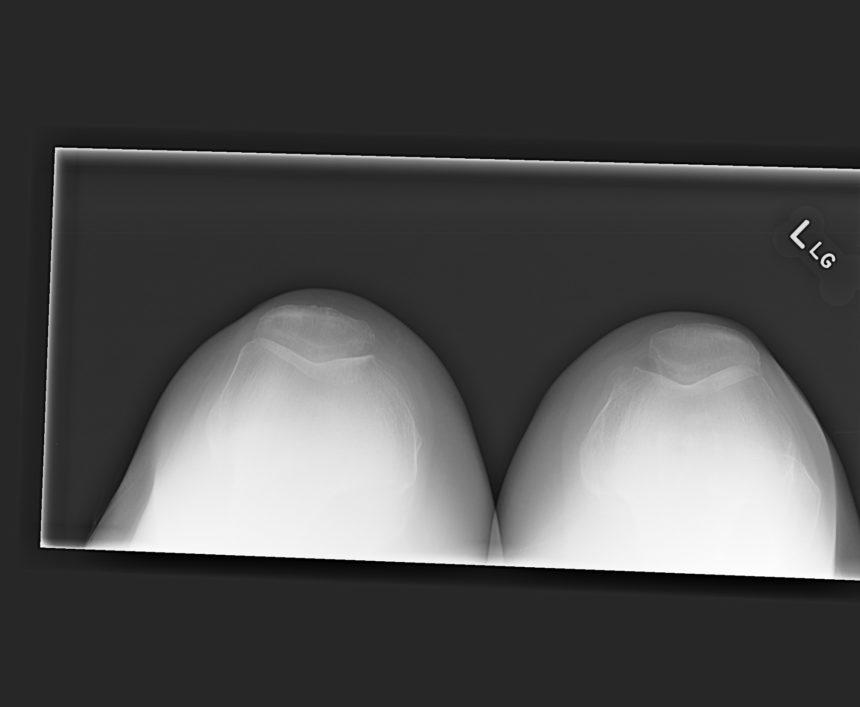 Figure 2. Sunrise radiograph of the knees.