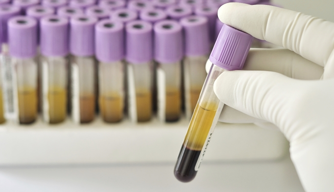 The test can be used to screen organ donors for the two major types of HIV.