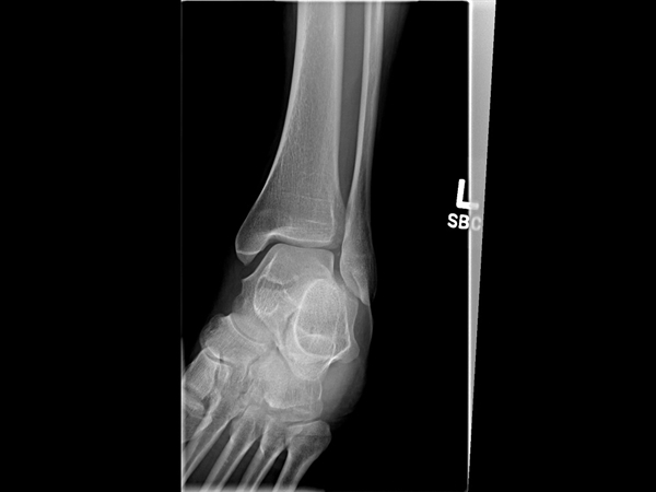 Anteroposterior mortise radiograph of the patient's ankle shows no fracture or syndesmotic widening.