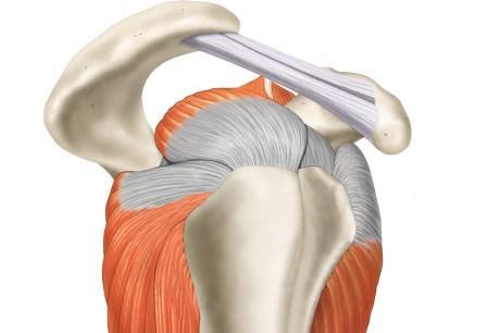 rotator cuff, shoulder pain