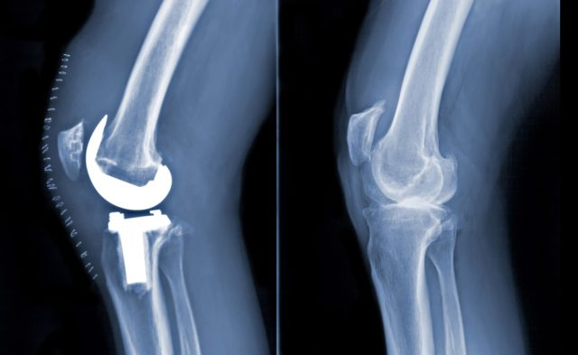 TKR knee replacement OA