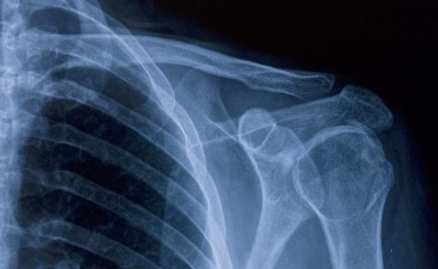 An x-ray of a shoulder