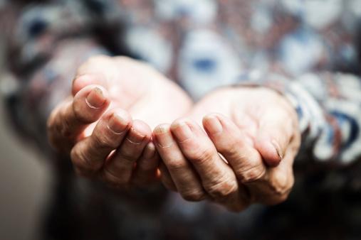 Adalimumab Biosimilar Effective in Rheumatoid Arthritis
