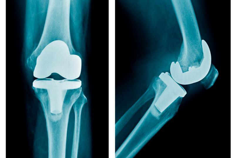 Total knee arthoplasty x-ray