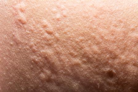 Allergic reaction