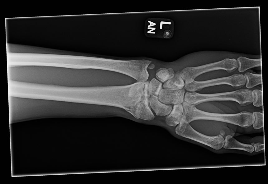 Figure 1. Anteroposterior radiograph of the left wrist.