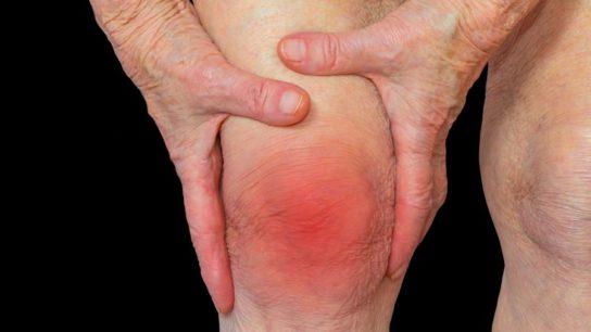 Knee pain in an elderly woman