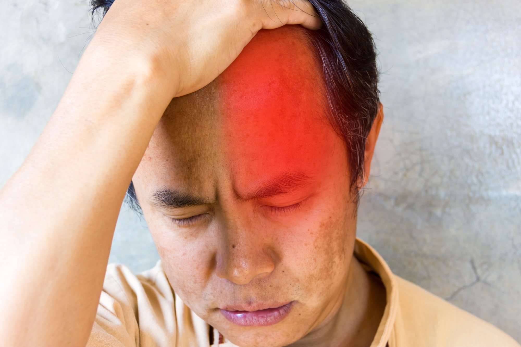 Clinical Characteristics of Cluster Headache Attacks Vary Considerably - Clinical Pain Advisor