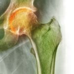 Arthritis of the hip, X-ray