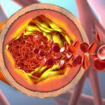 arteriosclerosis, narrowing blood vessels
