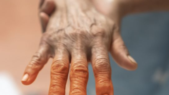Peripheral Neuropathy pain in elderly patient