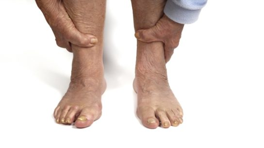 The Neuropathy Spectrum