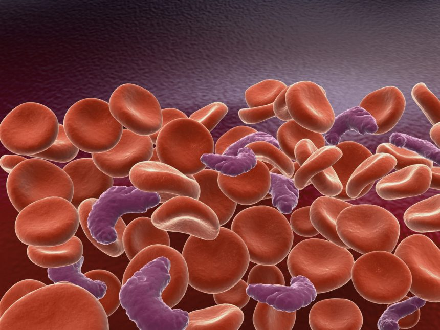 sickle cell anemia with red blood cells