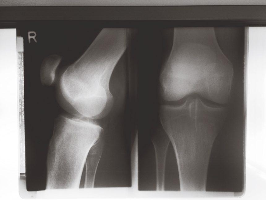 knee x-rays, patella