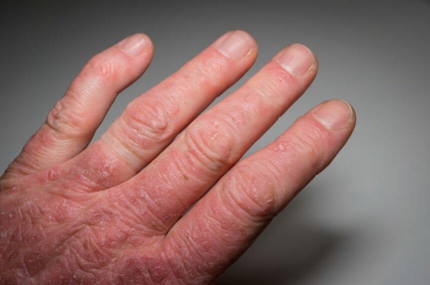 hand with psoriatic arthritis, psoriasis
