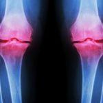 Osteoarthritis Knee obese