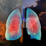 Lungs Wildfire Air Pollution