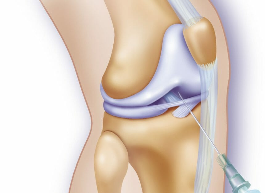 Knee Joint Arthrography RM Rights Managed. (Photo By BSIP/UIG Via Getty Images)