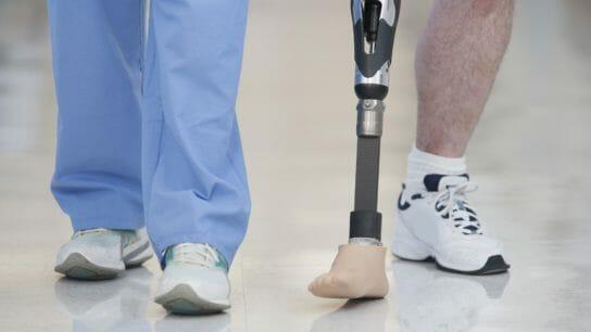 Nurse helping man walk with prosthetic leg